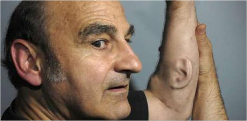 Figure 4 - Stelarc and his Third Ear, 2010. Photograph by unknown. Permission of use given by the artist.